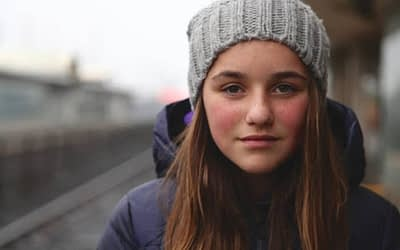 What is a typical teen girl experience versus PCOS?