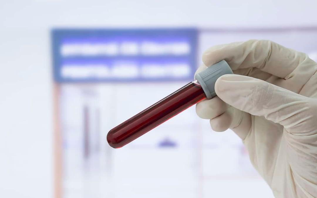 Hashimoto's Thyroid: More than just thyroid testing.